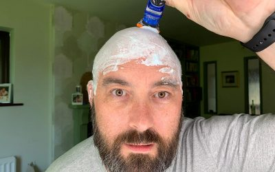 The bald truth